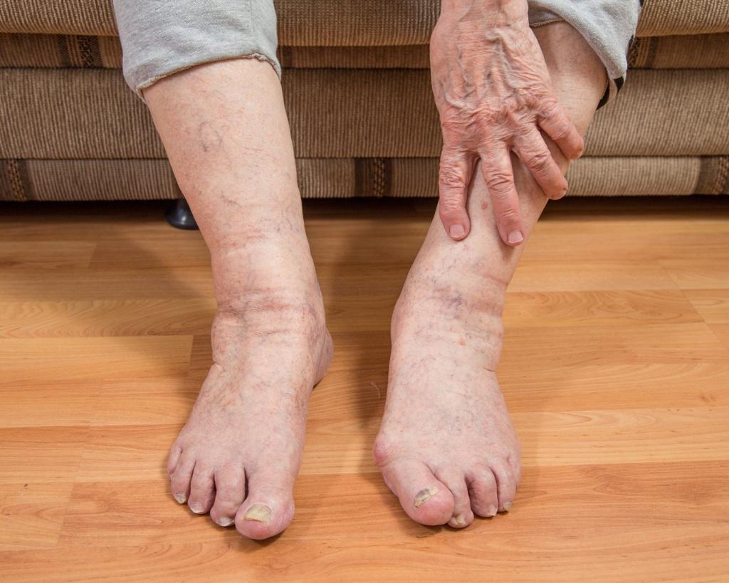 Как проявляются отеки у пожилых людей
