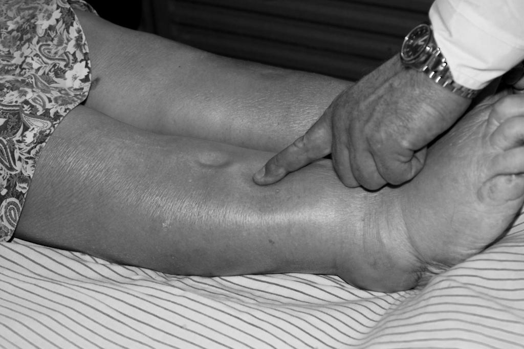 Как диагностируют отечность ног у пожилых